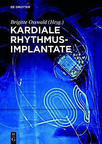 """Kardiale Rhythmusimplantate: Manual zum Zertifikat der DGTHG """"Herzschrittmacher-, ICD- und CRT-Therapie"""""""