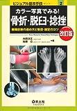 カラー写真でみる!骨折・脱臼・捻挫 第2版―画像診断の進め方と整復・固定のコツ (ビジュアル基本手技 2)
