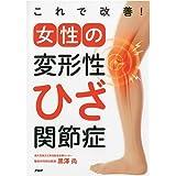 これで改善!女性の変形性ひざ関節症