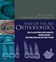 State-of-the-Art Orthodontics: Self-Ligating Appliances, Miniscrews and Second Molars Extraction, 1e