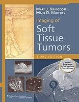 Imaging of Soft Tissue Tumors