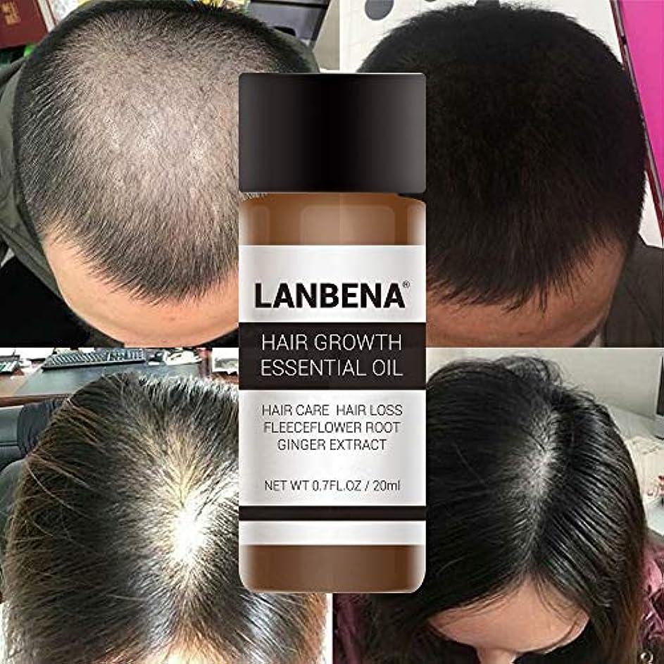 ふりをする批判的にここに(最高の品質と価格)3×20ミリリットル高速強力な髪の成長エッセンス製品エッセンシャルオイル液体トリートメント防止脱毛ヘアケア20ミリリットル×3ピース (Best Quality & Price) 3X 20ml Fast...
