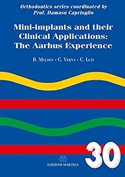 Mini-implants And Their Clinical Applications: The Aarhus Experience by [Melsen, Birte, Verna, Carlalberta, Luzi, Cesare]