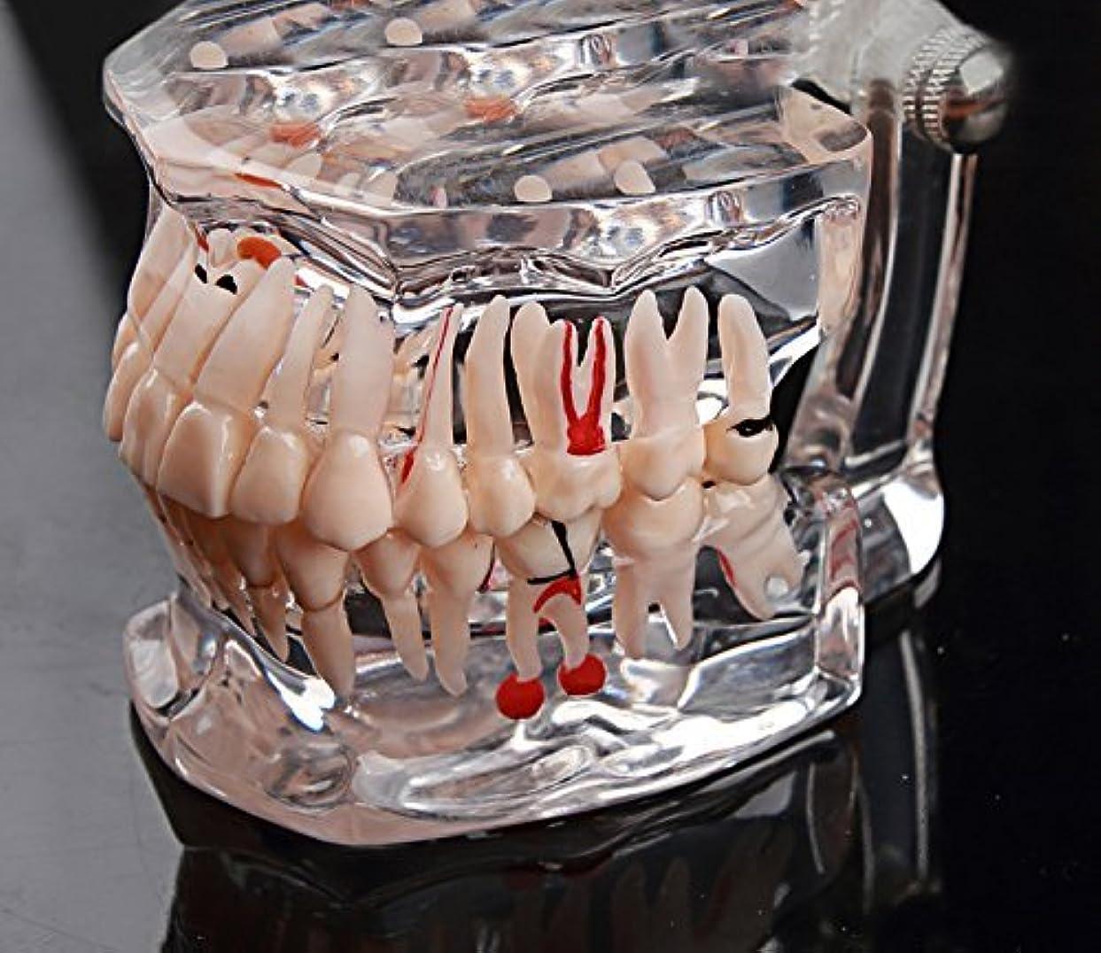 生物学ポイントダイジェストGoDen大人と小児歯科 歯科疾患展示?説明用模型