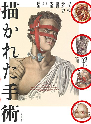 描かれた手術 (Wellcome collection)