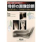 救急・当直で必ず役立つ!骨折の画像診断―全身の骨折分類のシェーマと症例写真でわかる読影のポ