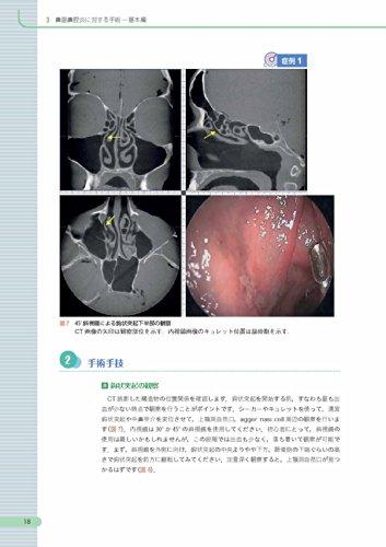内視鏡下鼻副鼻腔・頭蓋底手術 [3DCT画像データDVD-ROM付]: CT読影と基本手技