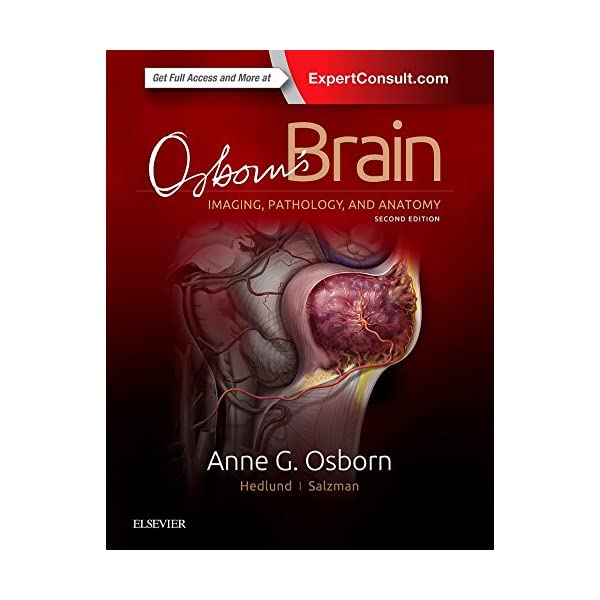 Osborns Brain, 2eの商品画像