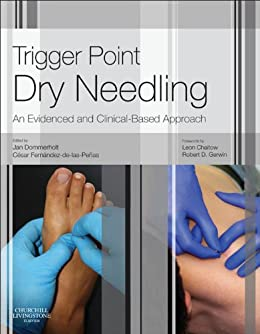 Trigger point dry needling e book an evidence and clinical based trigger point dry needling e book an evidence and clinical based approach by fandeluxe Gallery