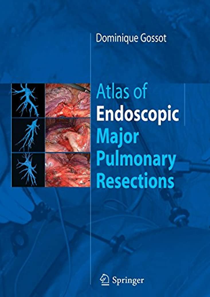 打ち上げる大騒ぎ高価なAtlas of endoscopic major pulmonary resections