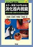 カラー写真で必ずわかる!消化器内視鏡―適切な検査・治療のための手技とコツ (ビジュアル基本手技)
