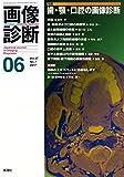 画像診断2017年6月号 Vol.37 No.7