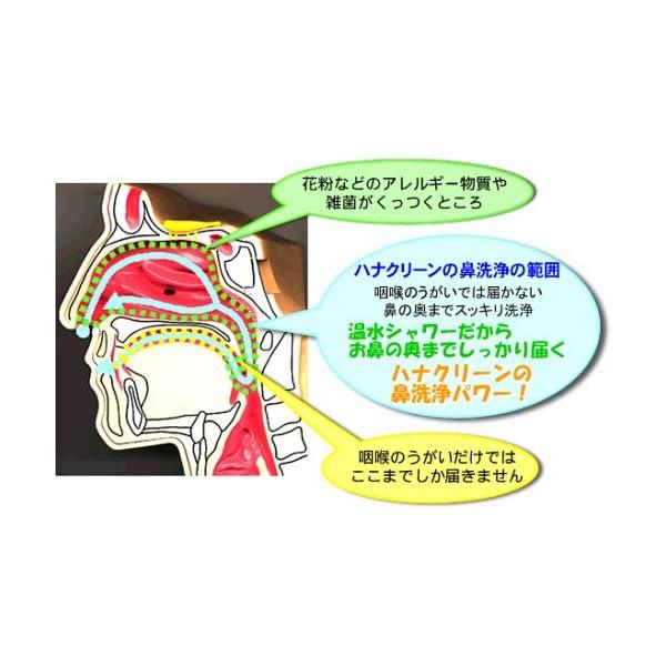 ハナクリーンEX(デラックスタイプ鼻洗浄器)の紹介画像2
