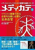 イラストと画像でみる血管内治療に必要な全身血管 (メディカルスタッフのための血管内治療シリーズ メディカテ3)