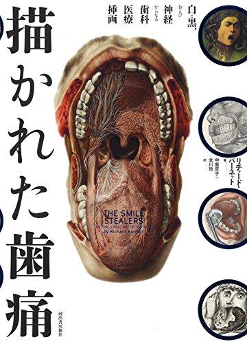 描かれた歯痛: 白と黒、および神経からなる歯科医療挿画 (wellcome collection)