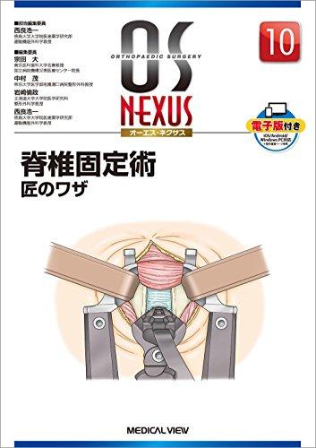 脊椎固定術 匠のワザ (OS NEXUS(電子版付き) 10)
