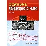 ここまでわかる頭部救急のCT・MRI