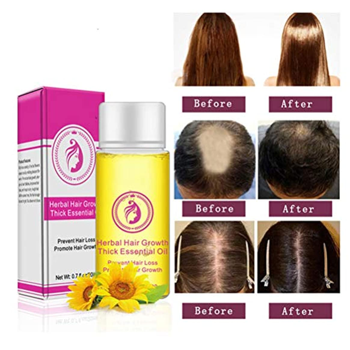 キャプション石灰岩引退するBSMEAN 20mlヘアセラム、育毛セラム、薄毛用育毛オイル、脱毛防止セラム、発毛促進、毛根の強化、男性および女性用の再成長製品