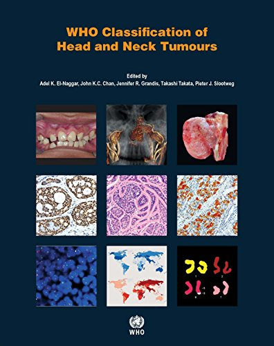 WHO Classification of Head and Neck Tumours (World Health Organization Classification of Tumours)