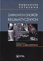 Diagnostyka obrazowa zapalnych chorob reumatycznych