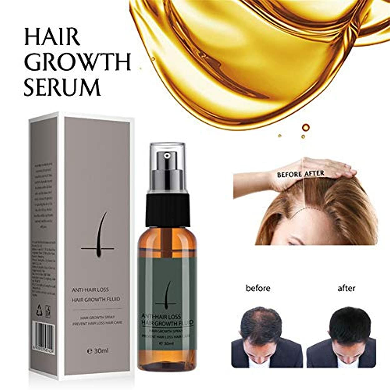 逆憲法ワイプハーブの毛の成長の反毛損失の液体は厚く速い毛の成長の処置30ml精油のヘルスケアの美の本質を促進します