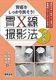 胃癌をしっかり表そう! 胃X線撮影法 虎の巻〜撮影手技を基本から応用まで段階的にマスターできる!