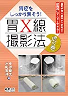 胃癌をしっかり表そう! 胃X線撮影法 虎の巻~撮影手技を基本から応用まで段階的にマスターできる!