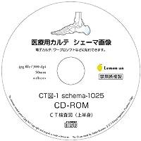 電子カルテ用シェーマ画像-CT図1025