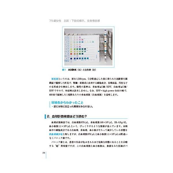 臨床検査専門医が教える 異常値の読み方が身につく本の紹介画像11