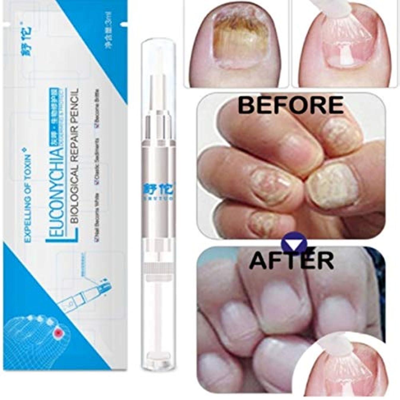 ズボンマリン顕著Kongqiabona 3ML真菌爪治療ペン爪真菌症爪垢抗真菌爪の感染中国のハーブトウネイル真菌の治療