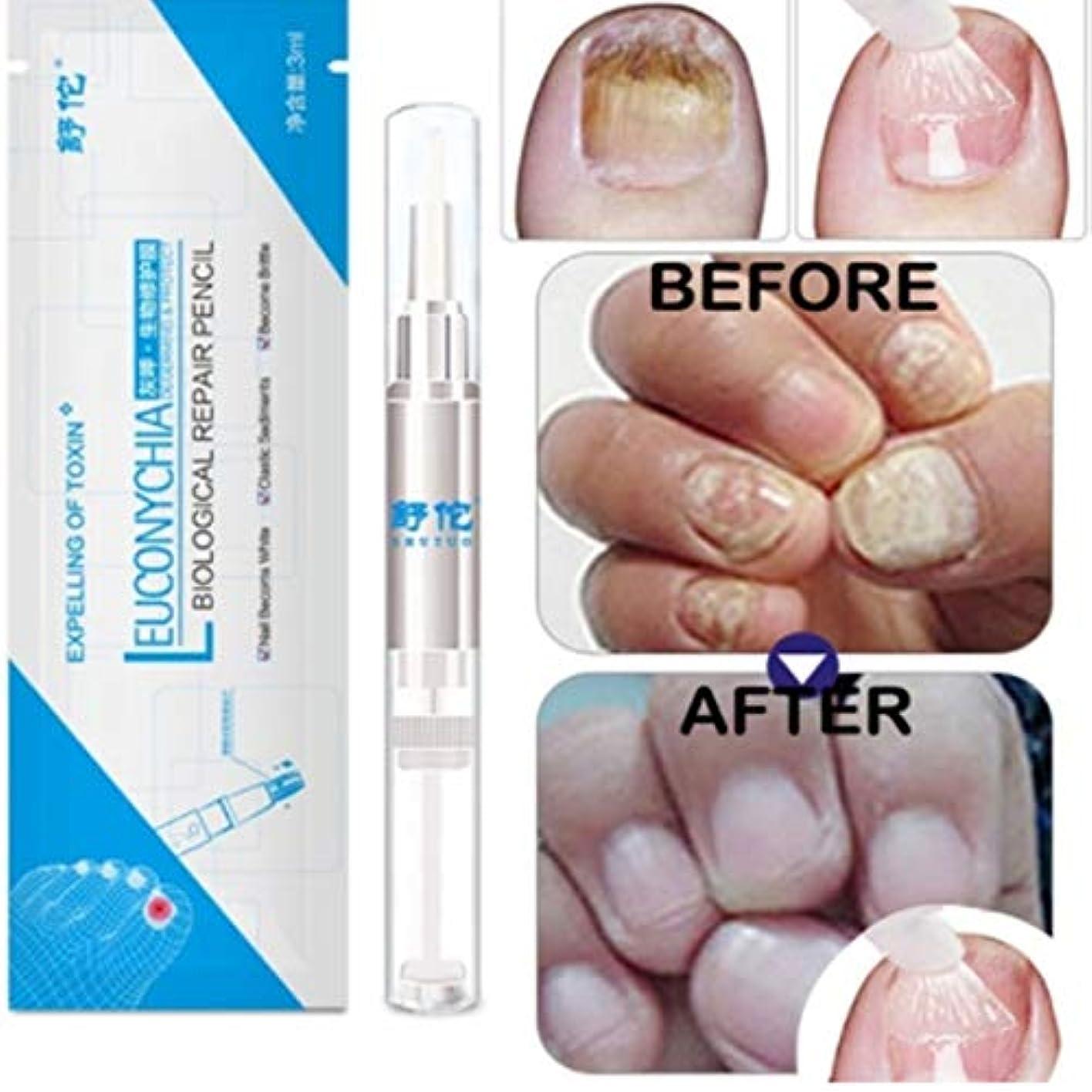 まどろみのある鮮やかな誕生日Kongqiabona 3ML真菌爪治療ペン爪真菌症爪垢抗真菌爪の感染中国のハーブトウネイル真菌の治療