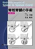 脊椎脊髄の手術 第Ⅱ巻