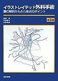 イラストレイテッド外科手術―膜の解剖からみた術式のポイント