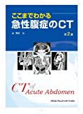 ここまでわかる急性腹症のCT 第2版