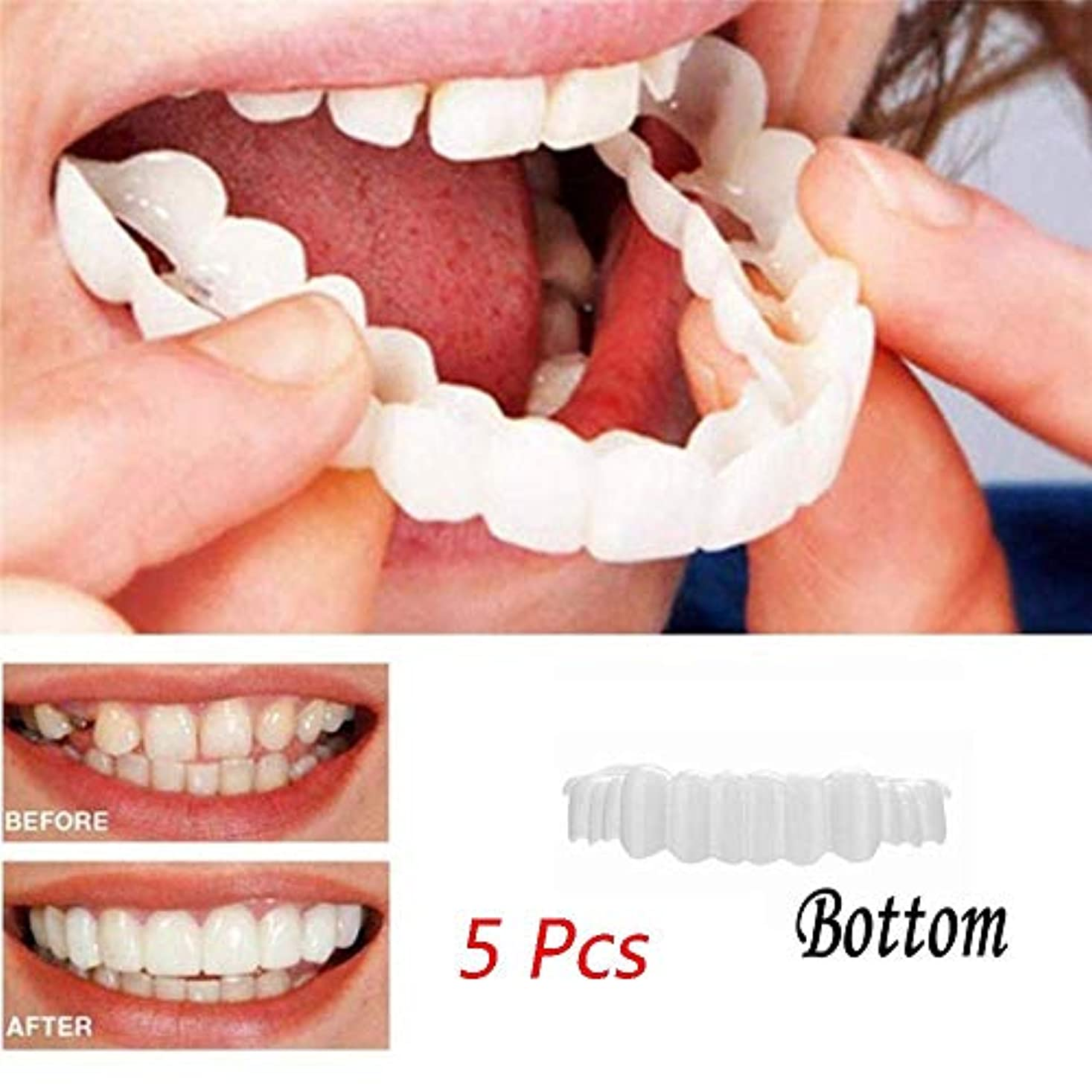 申し立てるいつペンフレンド突き板歯5ピースインスタントスマイル歯ホワイトニング歯スナップ化粧品義歯底化粧品突き板ワンサイズフィット最も快適な下突き板