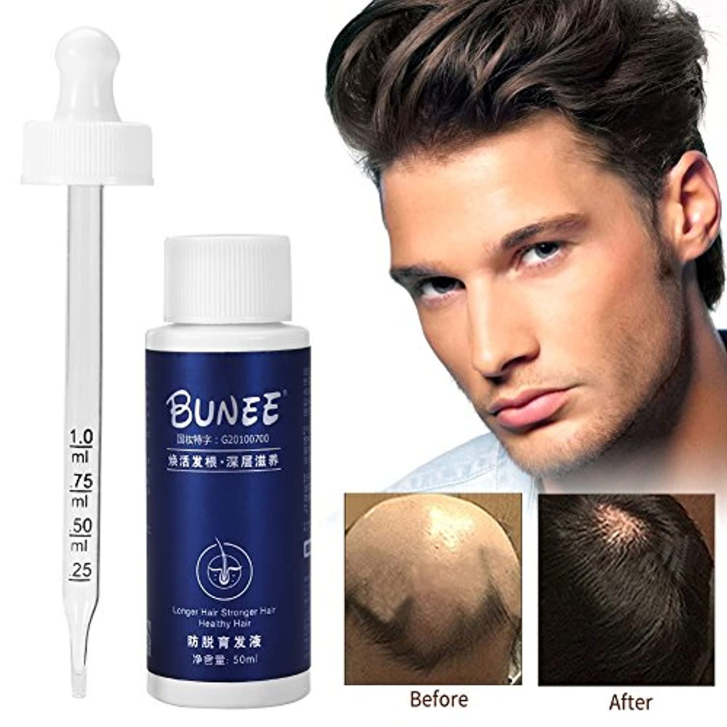 インキュバスキャンディーこっそり育毛オイル、液体育毛剤増粘剤天然植物エキス血清、高速発毛製品エッセンスが発毛を促進し、脱毛を防ぎ、薄毛、はげ