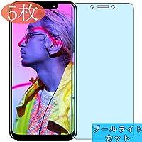 【5枚】 Sukix ブルーライトカット BLU Vivo One Plus 2019 自己修復 日本製素材 4H フィルム 保護フィルム 気泡無し 0.15mm 液晶保護 フィルム プロテクター 保護 フィルム(*非 ガラスフィルム 強化ガラス ガラス ) ブルーライト カット