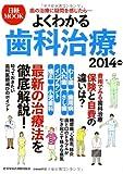 よくわかる歯科治療 2014年版 (日経ムック)