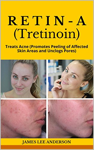 RETIN-A (Tretinoin): Treats Acne (Promotes Peeling of Affected Skin Areas and Unclogs Pores) (English Edition)