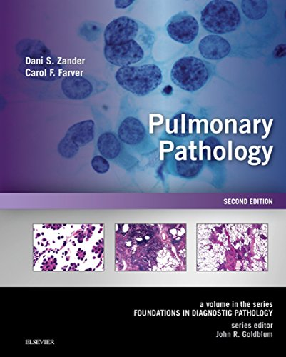 Pulmonary Pathology E-Book: A Volume in Foundations in Diagnostic Pathology Seriesの詳細を見る