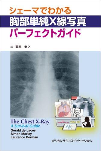 シェーマでわかる胸部単純X線写真パーフェクトガイドの詳細を見る