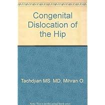 Congenital Dislocation of the Hip