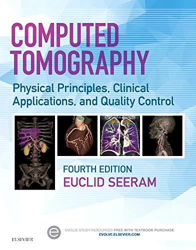 Download Computed Tomography: Physical Principles, Clinical Applications, and Quality Control, 4e 0323312888