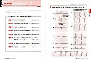 心電図の読み方パーフェクトマニュアル―理論と波形パターンで徹底トレーニング!