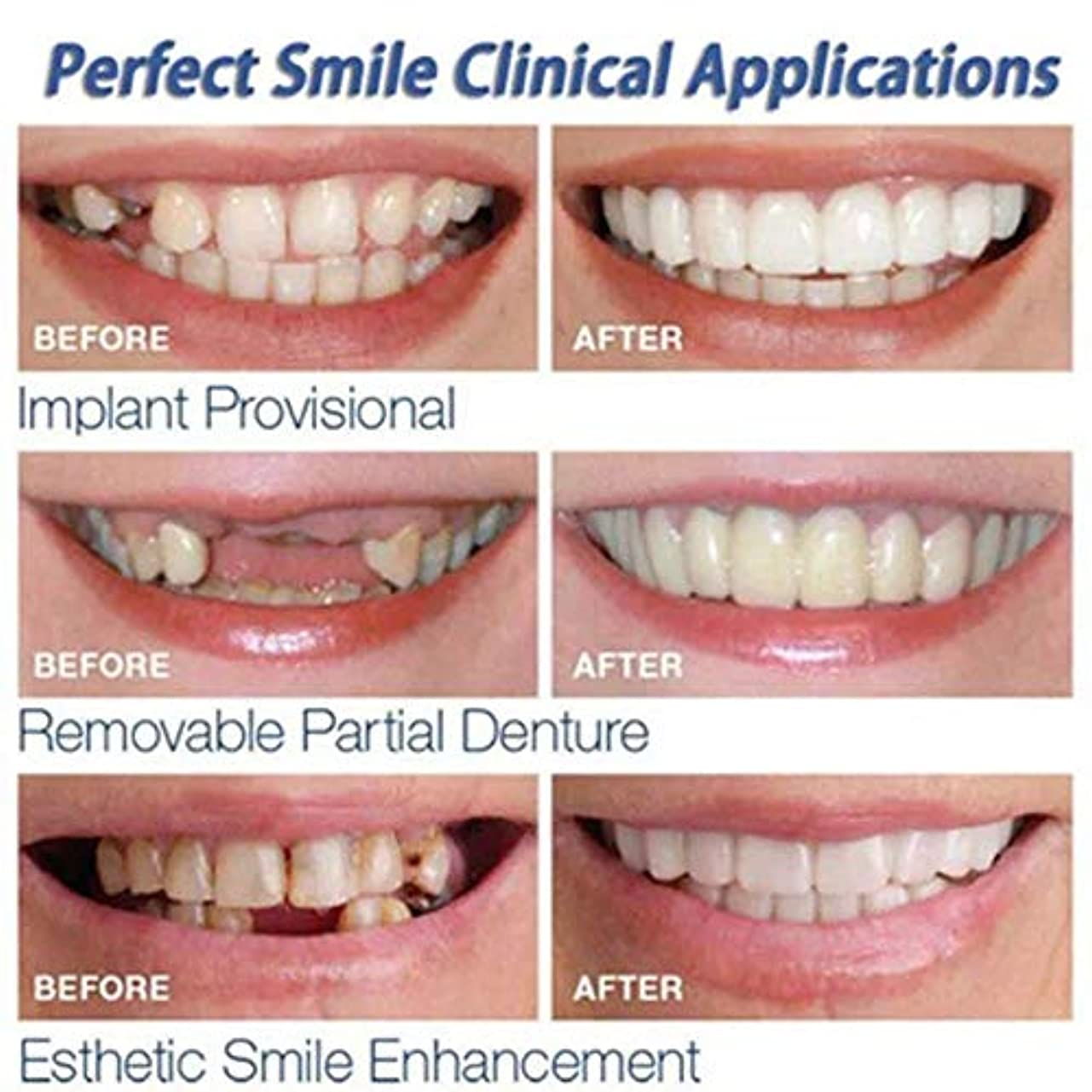 傾向治療反毒上下歯シミュレーションブレース、第二世代シリコーン模擬歯、(プラスチックボックス、OPPバッグ付き),roundboxopp