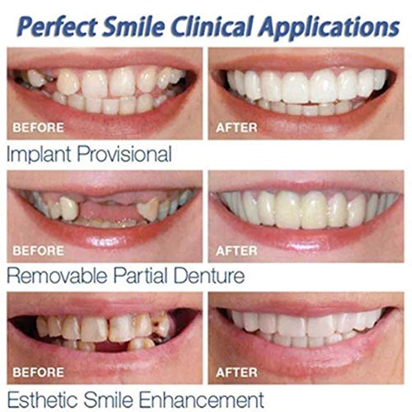 後手入れ冗長3PCS上下歯シミュレーションブレース、第2世代シリコーン模擬歯、(プラスチックボックス、OPPバッグ付き),Opppackaging