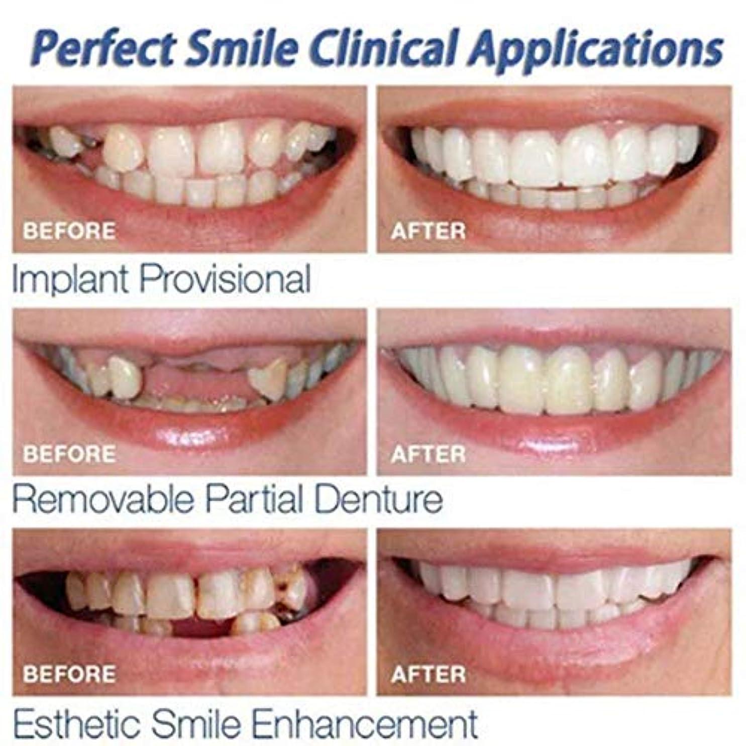 保証するテープ途方もない上下歯シミュレーションブレース、第二世代シリコーン模擬歯、(プラスチックボックス、OPPバッグ付き),roundboxopp
