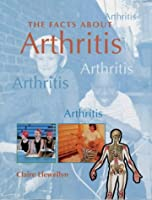 FACTS ABOUT ARTHRITIS