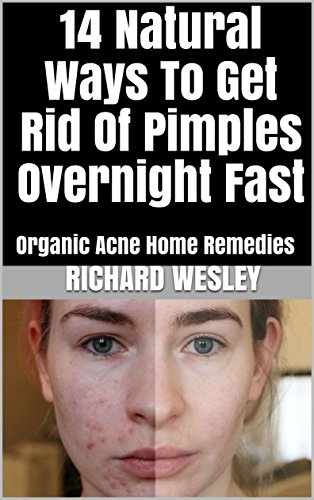 get rid acne overnight home remedies