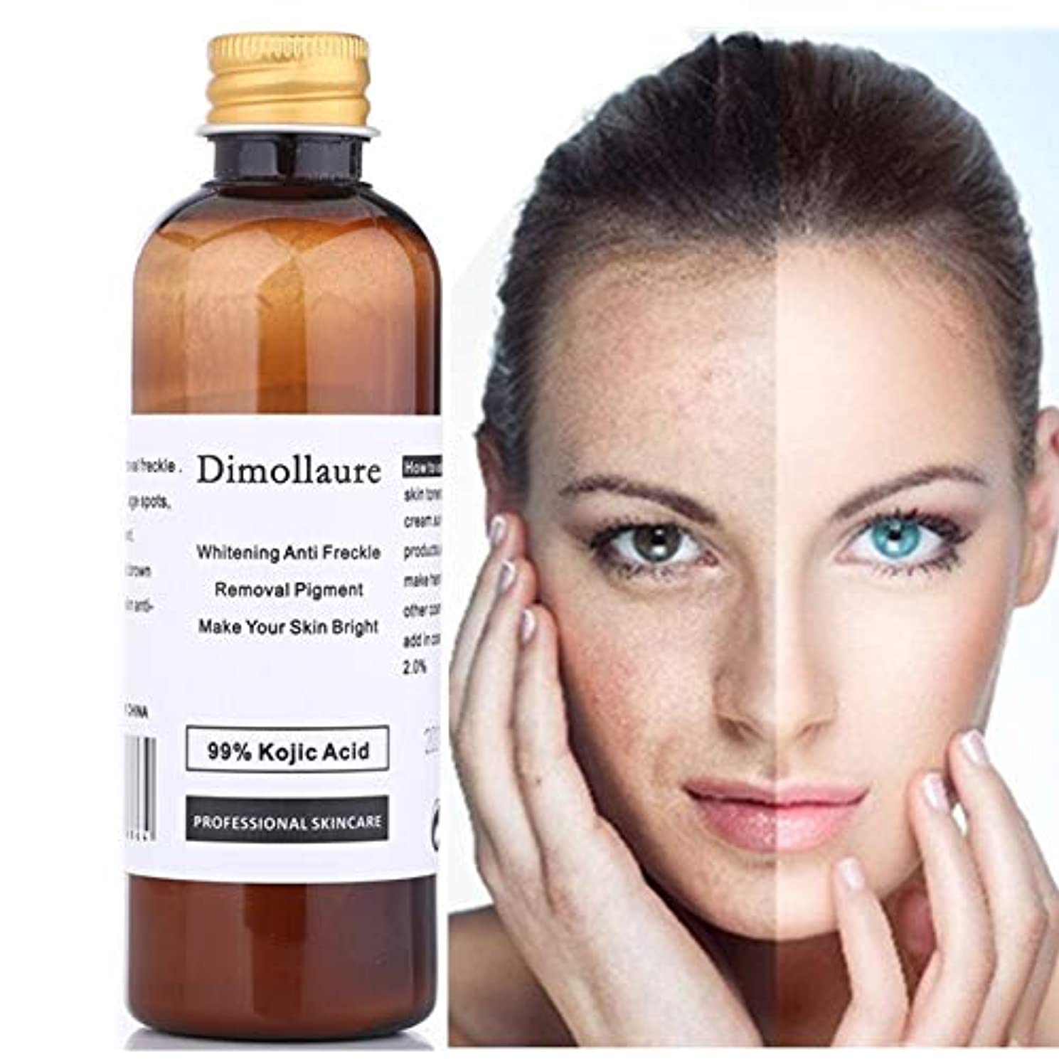 褐色水分外交官Dimollaure 30グラムの純粋な99%コウジ寧クリームしわの除去そばかす肝斑にきび瘢痕顔料年齢スポットメラニンSUNN